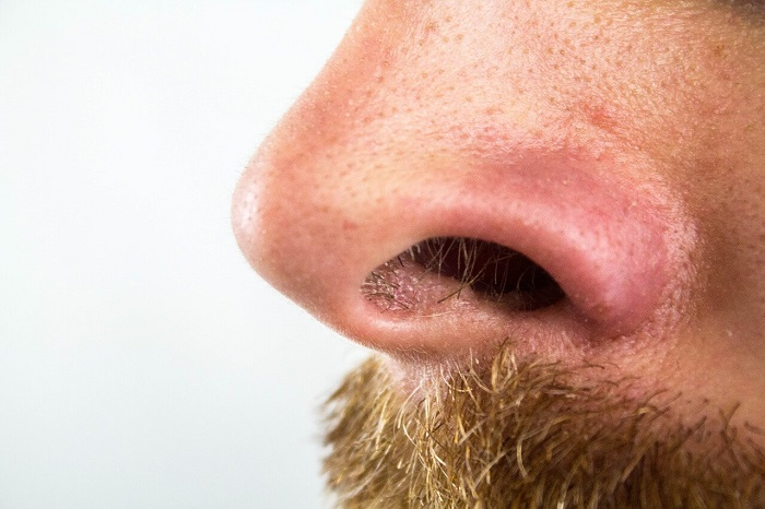 man with nose hair